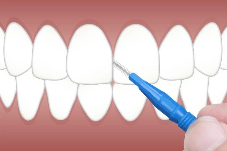 Implanty – umów się na wizytę do specjalisty